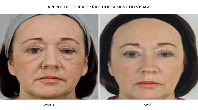 Rajeunir avec le photorajeunissement à Paris 16 | Dr Chouquet