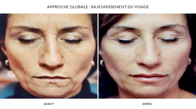 Photos Avant / Après - Photorajeunissement à Paris 16 | Dr chouquet
