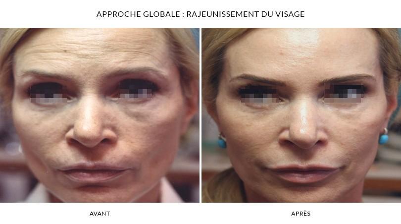 Rajeunissement du visage - Photos Avant et Après | Dr Chouquet