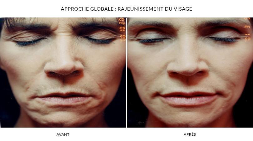 Photorajeunissement du visage - Photos Avant et Après | Dr Chouquet