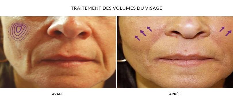 Traitement du volume du visage - Photos Avant - Après | Dr Chouquet