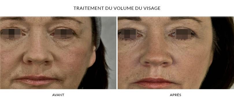 Traitement des volumes du visage - Photos Avant / Après | Dr Chouquet