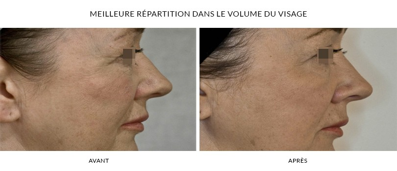 Injection d'acide hyaluronique au visage - Photos Avant / Après | Dr Chouquet